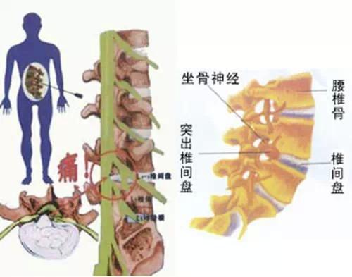 腰间盘突出症--最简单的治疗方式